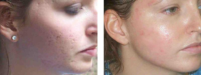 Laser Acne Scar Removal Cincinnati Co2 Fraxel Dot Micro