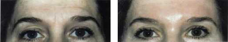 botox-eyes-2-copy