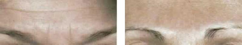 botox-forehead-copy