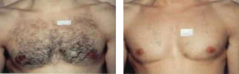 hair-chest-copy