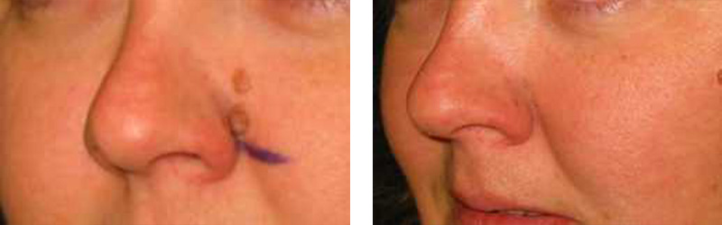 Mole Removal | Cosmetic Laser Institute 859-442-9000