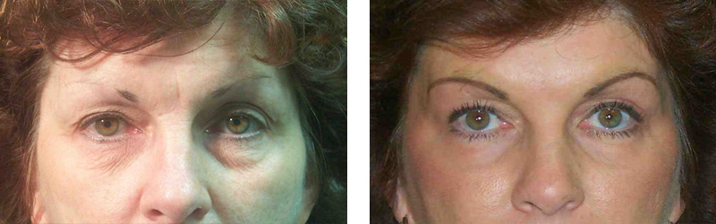 resurfacing-eyes-1-copy
