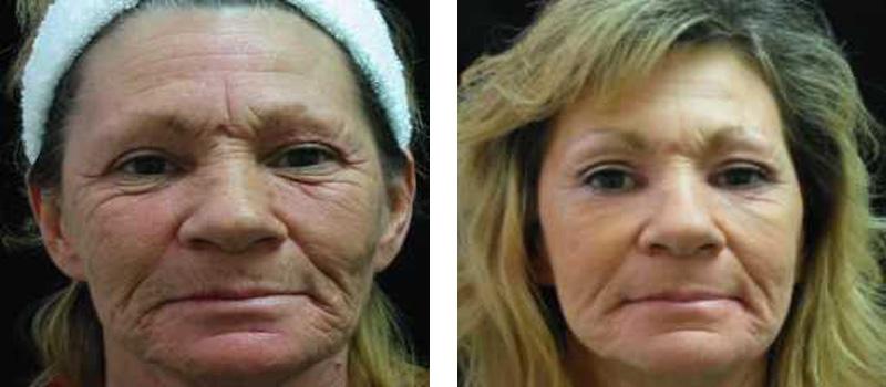 resurfacing-face-3-copy