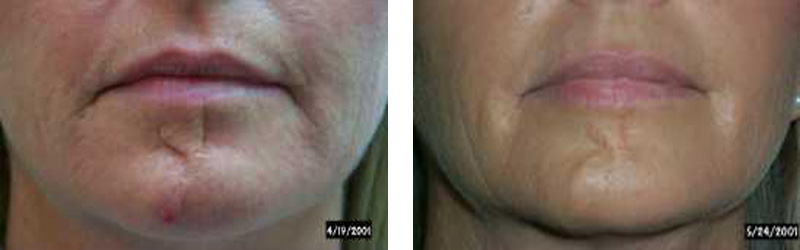 Scar laser revision cosmetic laser institute scar revision chin copy sciox Choice Image