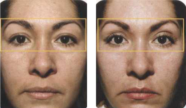 Face Life, Non-Surgical Thermage, Fraxel, Dot Laser