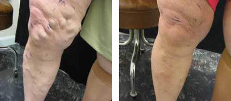 varicose-woman-r-leg-copy