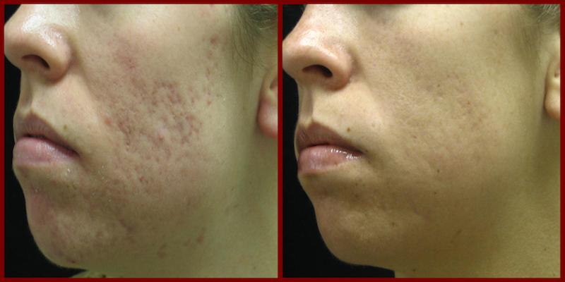 Acne Scar Laser Treatment - Cosmetic Laser Institute 859 ...