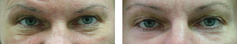 botox-eyes-copy