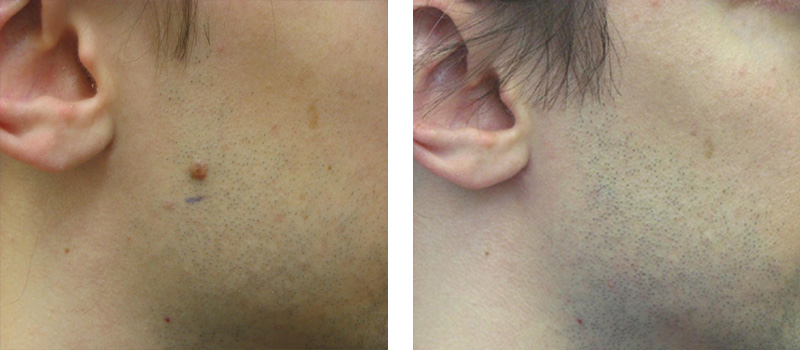 Mole Removal Cosmetic Laser Institute